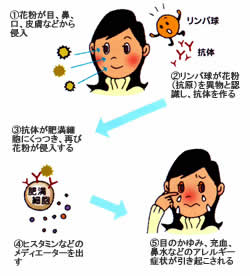 目のアレルギー