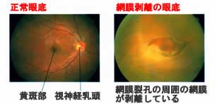 網膜剥離画像